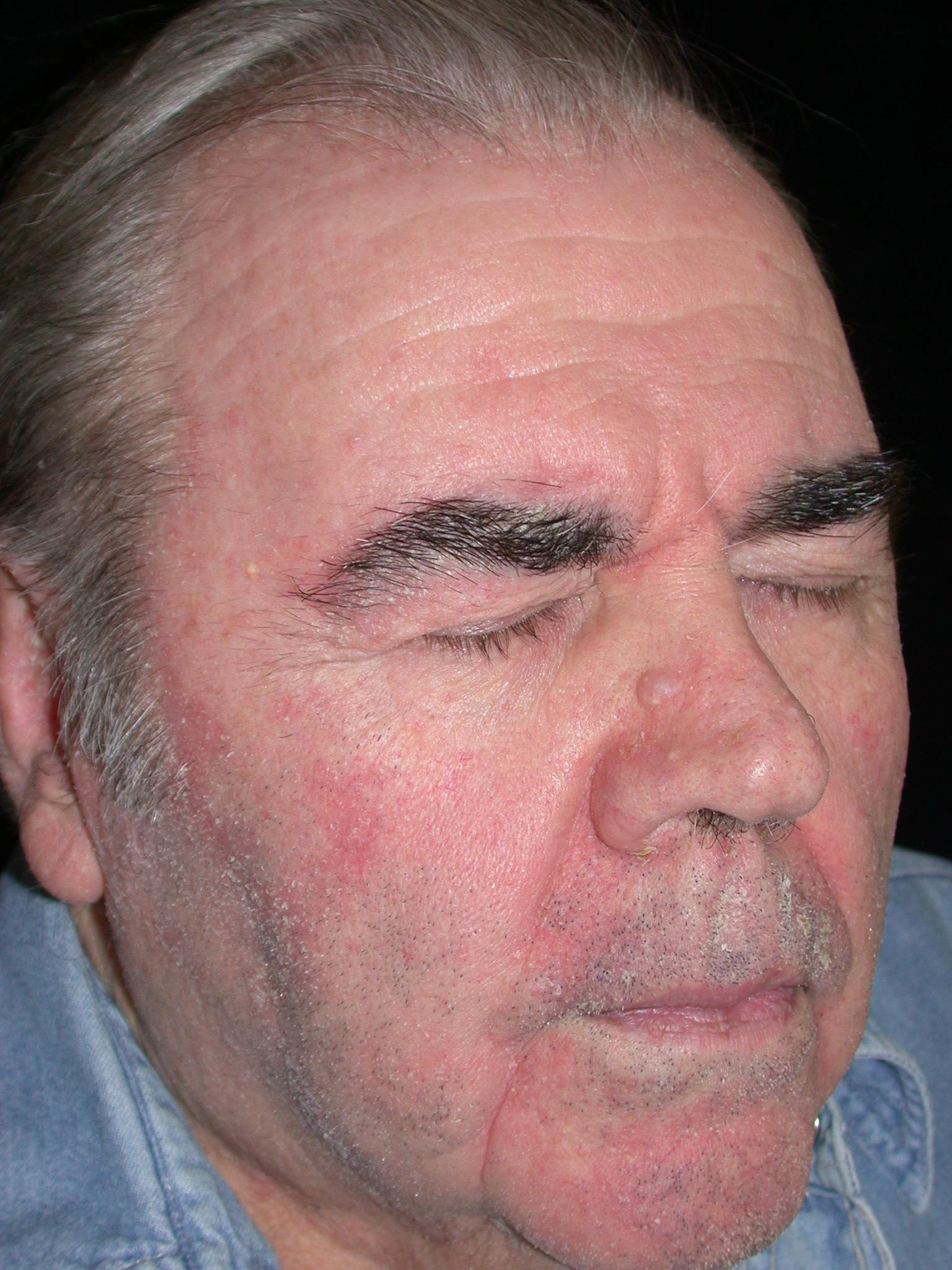 Le psoriasis des pieds et les pinceaux des mains