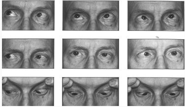 Paralysie du vi gauche le livre de s miologie m dicale for A porter du regard synonyme