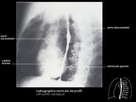 Radiographie de thorax : interprétation